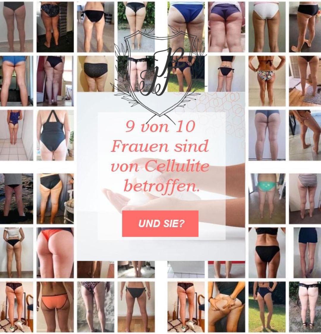Cellulite und Orangenhaut